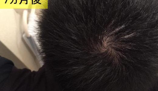 リアップを使って半年過ぎたら、髪の毛が太くなった【本気の育毛日記】