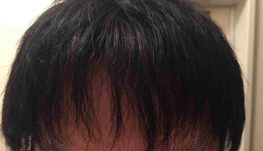 リアップで前髪がまばらに見えなくなった2つのワケをご紹介します